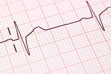 Health-Graph-Thumb-360-x-240